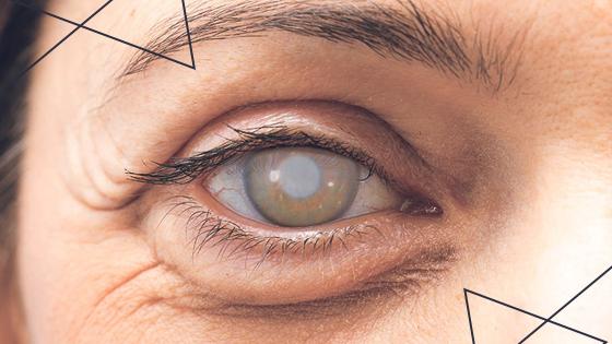 Catarata: causas, sintomas, diagnóstico e cirurgia de tratamento
